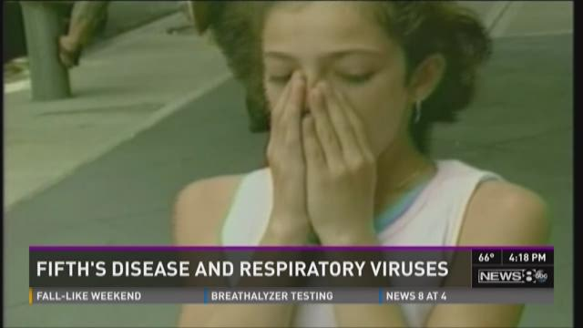 What's going around: Fifth disease, respiratory viruses