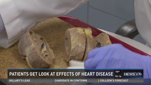 Patients get look at effects of heart disease